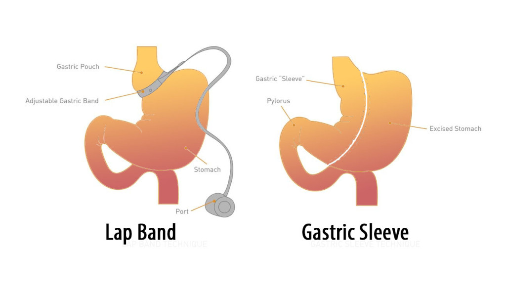 gastric bypass vs sleeve Gastric bypass has a number of benefits compared to gastric sleeve: • the surgery has been around longer, so its results and complications have been studied and the benefits proven the surgery historically produces more weight loss than gastric sleeve.
