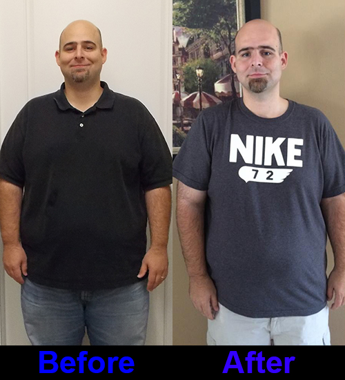 BeforeAfter10