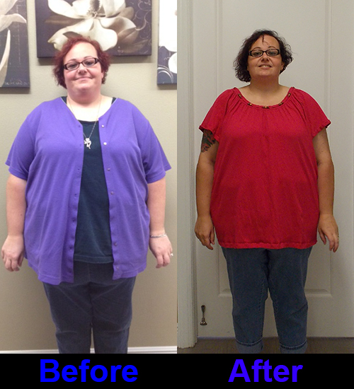 Laparoscopic Gastric Sleeve: 3 months Post Op