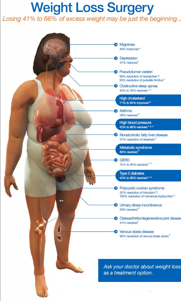 Average Weight Loss Bariatric Surgery