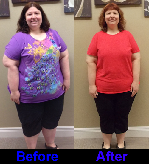 Gastric Sleeve Success Stories Freedom From Obesity Bariatric