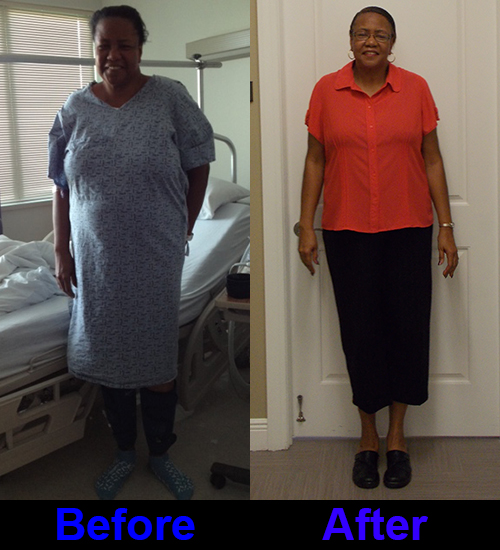 Surgery Weight Loss Before and After pictures from ...