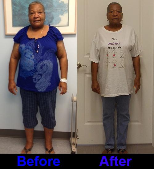 15 pound weight loss diet