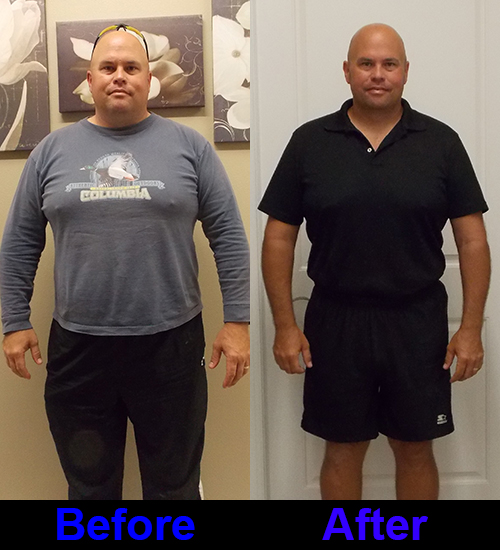 Surgery Weight Loss Before And After Pictures From